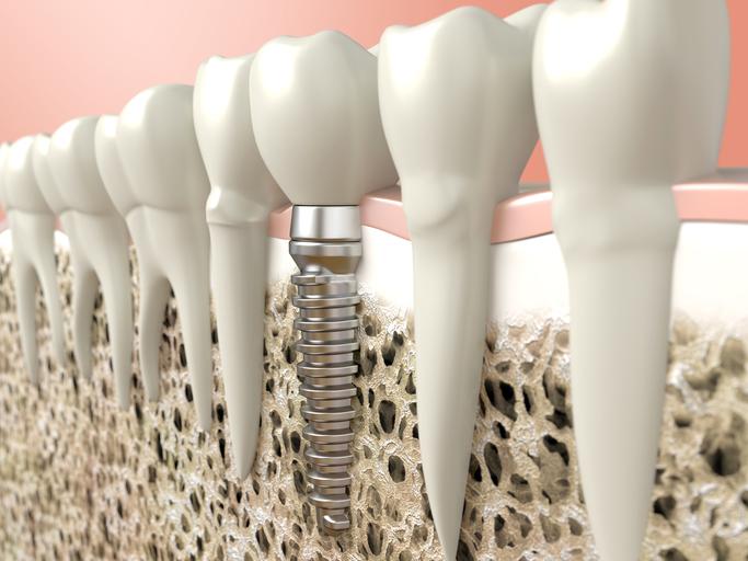 Slater Family Dental Cosmetic Dentistry Beaverton OR Professional