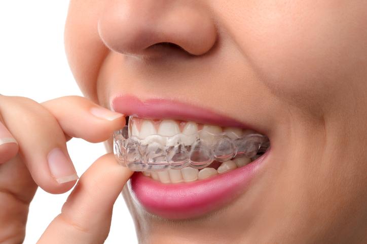 Slater Family Dental SureSmile Dentistry Offering Beaverton Aloha Oregon Dentist Service